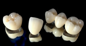 Dental Bridges and Crowns