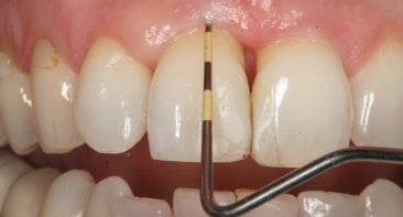 Gum Disease / Bleeding Gums Treatment (Periodontitis Treatment)