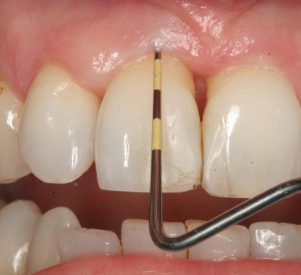 Gum Disease / Bleeding Gums Treatment (Periodontitis Treatment)