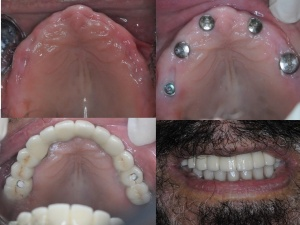 Full Mouth Implant