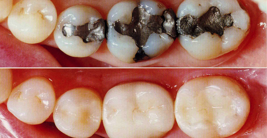 Restorative Dentistry - Tooth Coloured Restorations