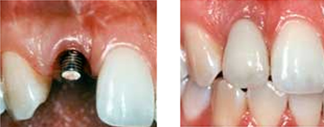 Dental Implant Post Chembur