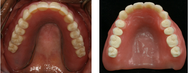 Implant Supported Complete Dentures