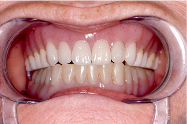 Denture treatments