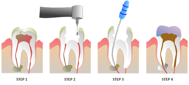 Restorative Dentistry Procedures