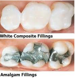 White composite and amalgam fillings