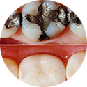 Tooth-Coloured-Restorations