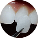 Cosmetic Dentistry - Dental Veneers